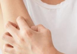 alerjik egzama nedenleri