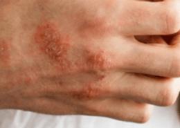 alerjik egzama tanısı