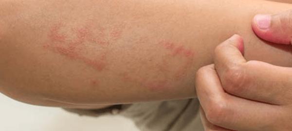 yetişkinlerde alerjik egzama