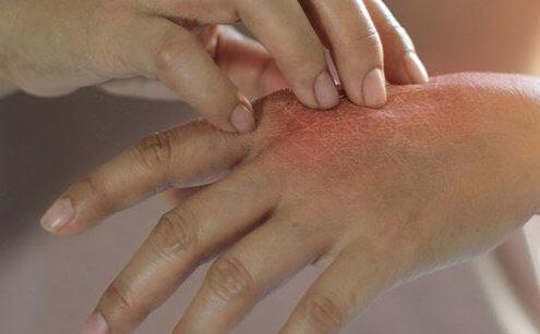 Besin alerjisini tetikleyen faktörler nelerdir