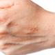 Lateks besin alerjisine yol açar mı