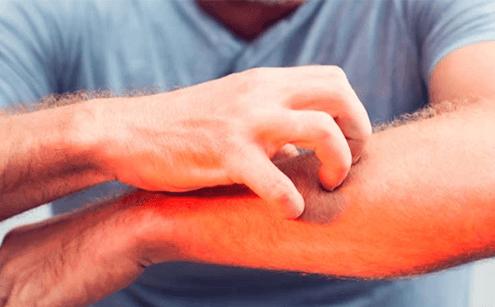 Yetişkinlerde Alerjik Kaşıntı